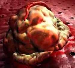 metástasis - cáncer