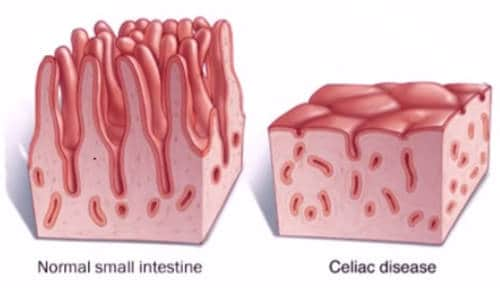 intestino normal sano y con enfermedad celiaca