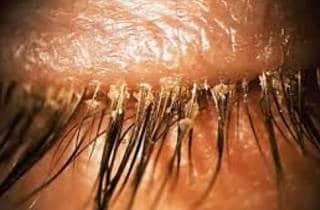 demodicosis ocular - infección pestanya por ácaro