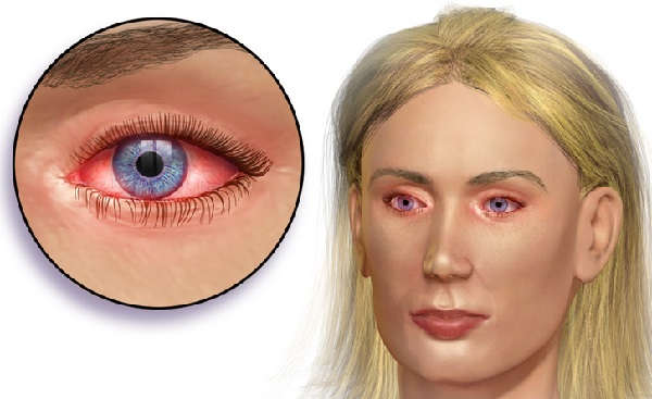 dibujo sobre la conjuntivitis en el ojo