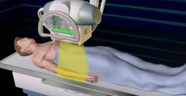 animación de tomografía computarizada
