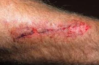 herida en brazo