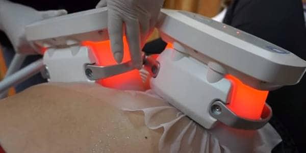 aplicando y realizando tratamiento por criolipolosis