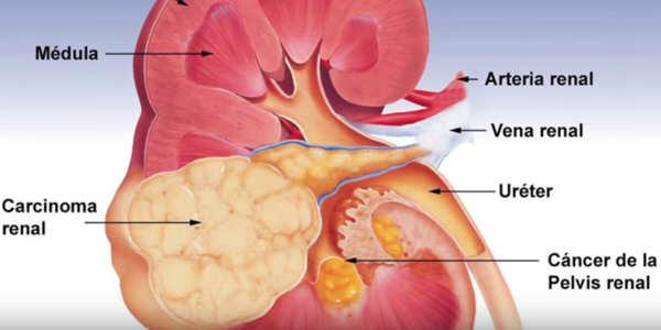 riñón con cáncer