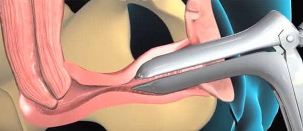 biopsia uterina endometrial