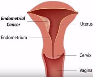 cáncer de endometrio o endometrial