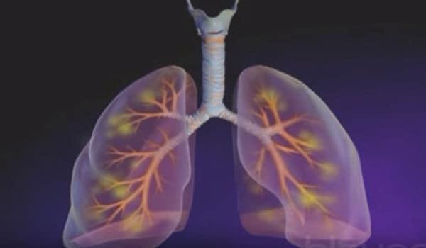 pulmones y neumonía