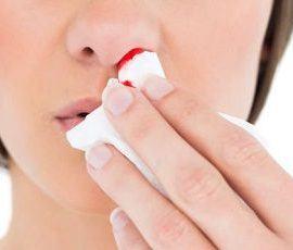 mujer con sangrado de nariz