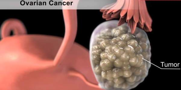 cáncer ovarios