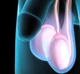 cáncer testicular o de testículos