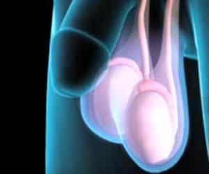 sintomas de cancer testicular en adultos