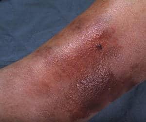 celulitis infecciosa