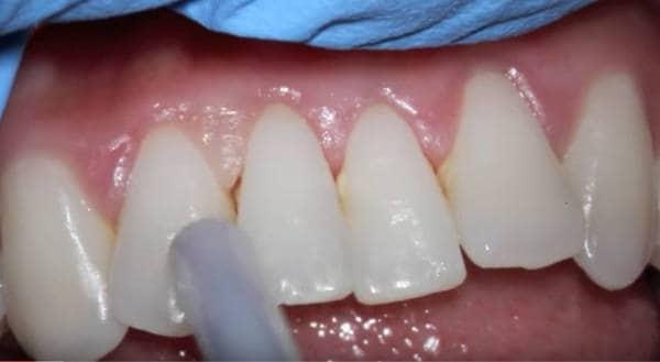 dentadura dental con gingivitis