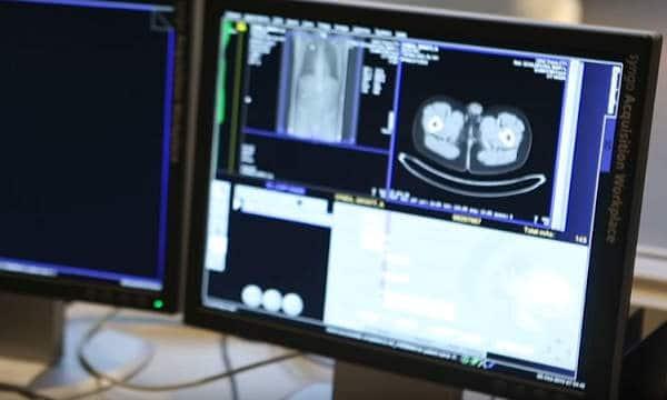 diagnóstico cáncer testicular