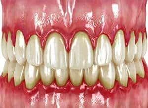 dientes con gingivitis