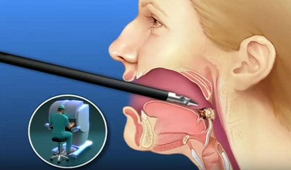 Partes de la garganta y el cuello - My HealtheVet
