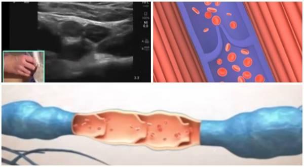 ¿pueden ser peligrosas las venas varicosas vulvares?