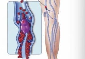 insuficiencia venosa crónica IVC