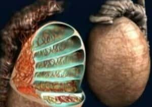 varicocele - varices testículos
