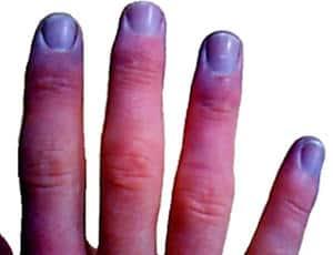 cianosis en uñas de las manos