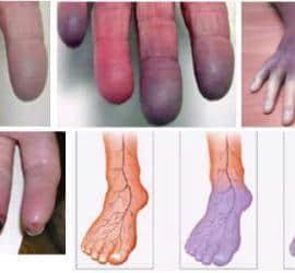 síntomas de cianosis