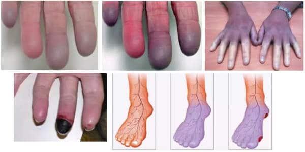 cianosis sintomas distales de diabetes