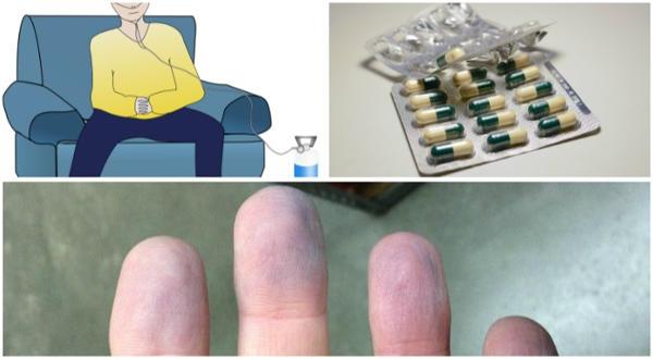 tratamientos para la cianosis