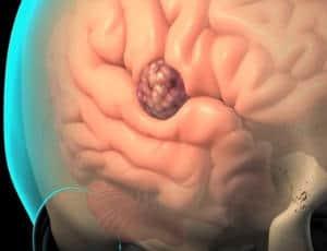 Síntomas de tumor cerebral problemas de equilibrio