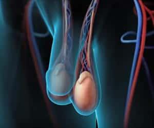 varicocele o varices testiculares