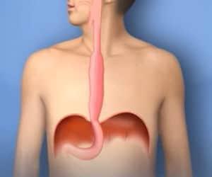cáncer esófago