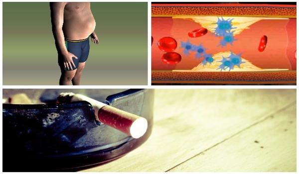 causas y factores de riesgo para enfermedad coronaria