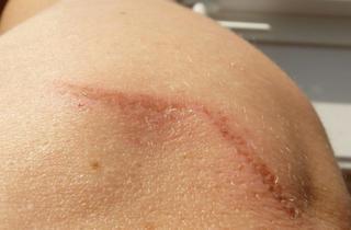 cicatriz en la piel