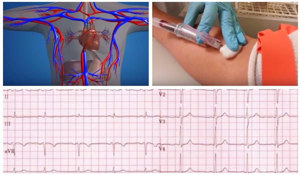 diagnóstico de la hipotensión arterial