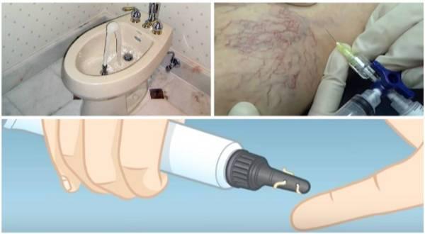 tratamientos para las varices anales