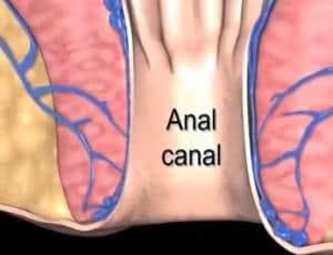 variz anal