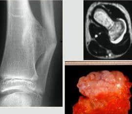 osteosarcoma o cáncer de huesos