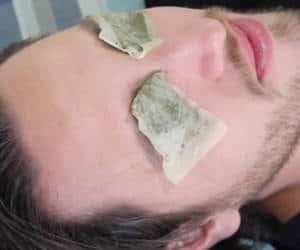 hombre con ojeras