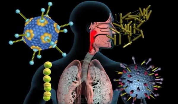 tipos de faringitis