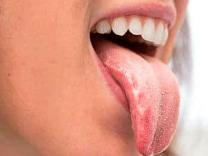 colores de la lengua